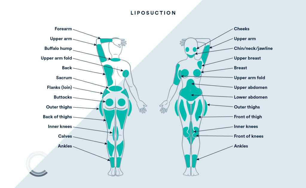 Where You Can Use Liposuction On The Body