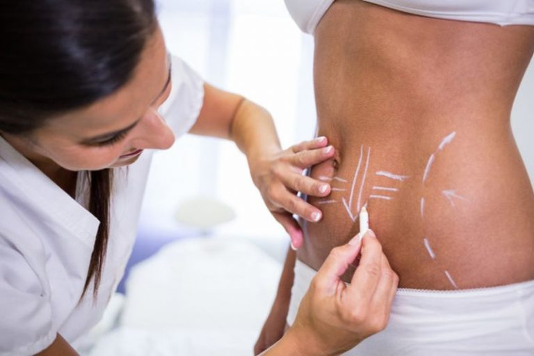 Liposuction or Coolsculpting: Which Works for Your Body?