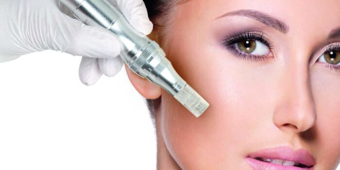 What Makes Microneedling Effective?
